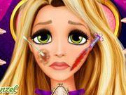 Rapunzel Real Surgery